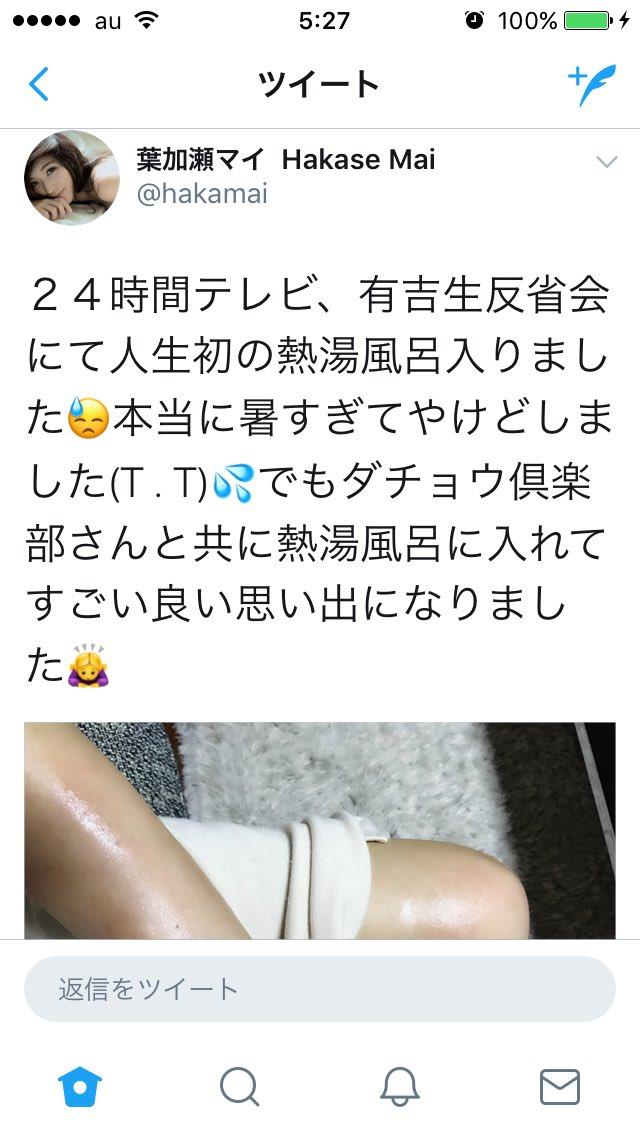 葉加瀬マイ「24時間テレビ」熱湯風呂のやけど報告で干される危機!?